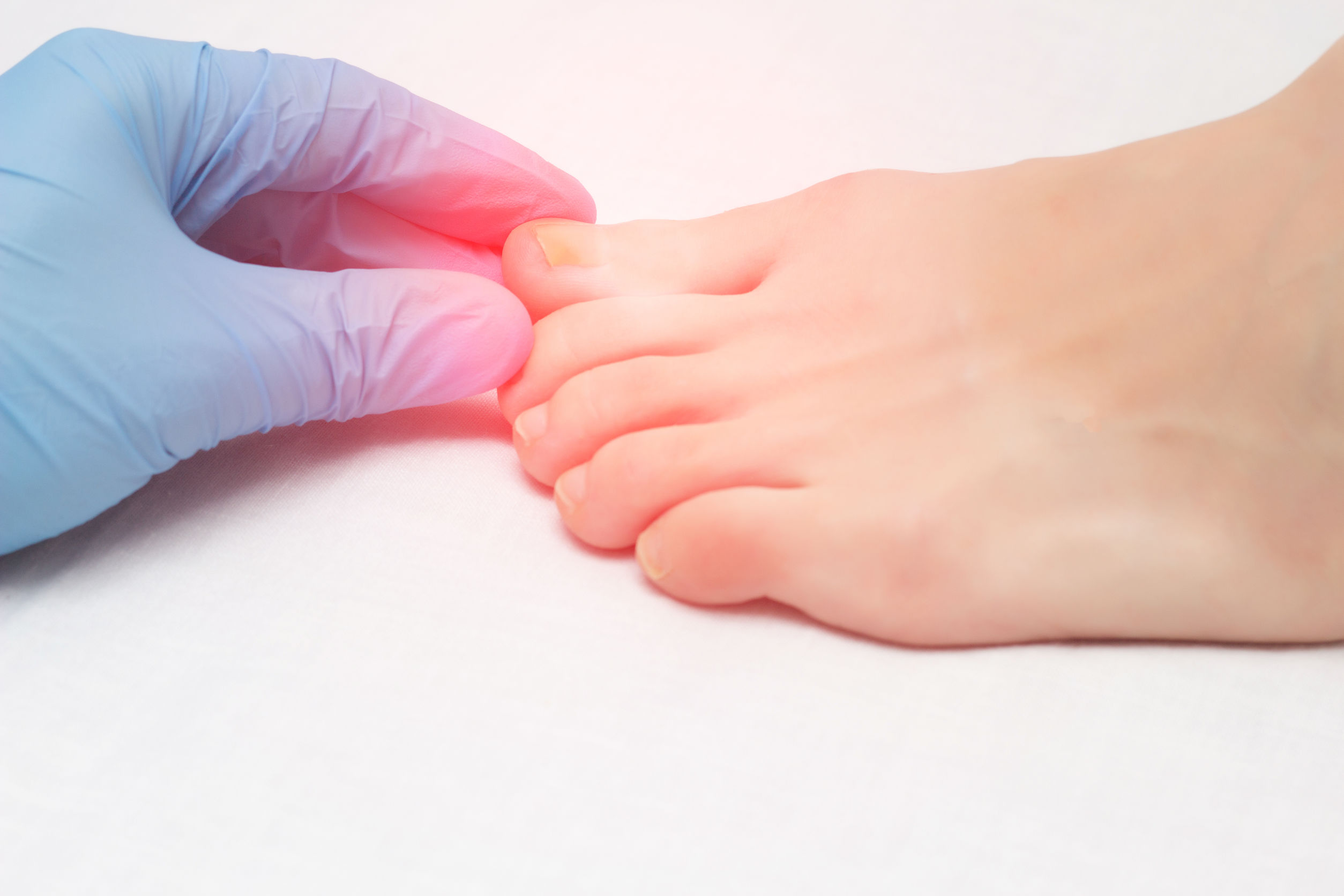 Ingrown Toenail | Spire Orthopaedic
