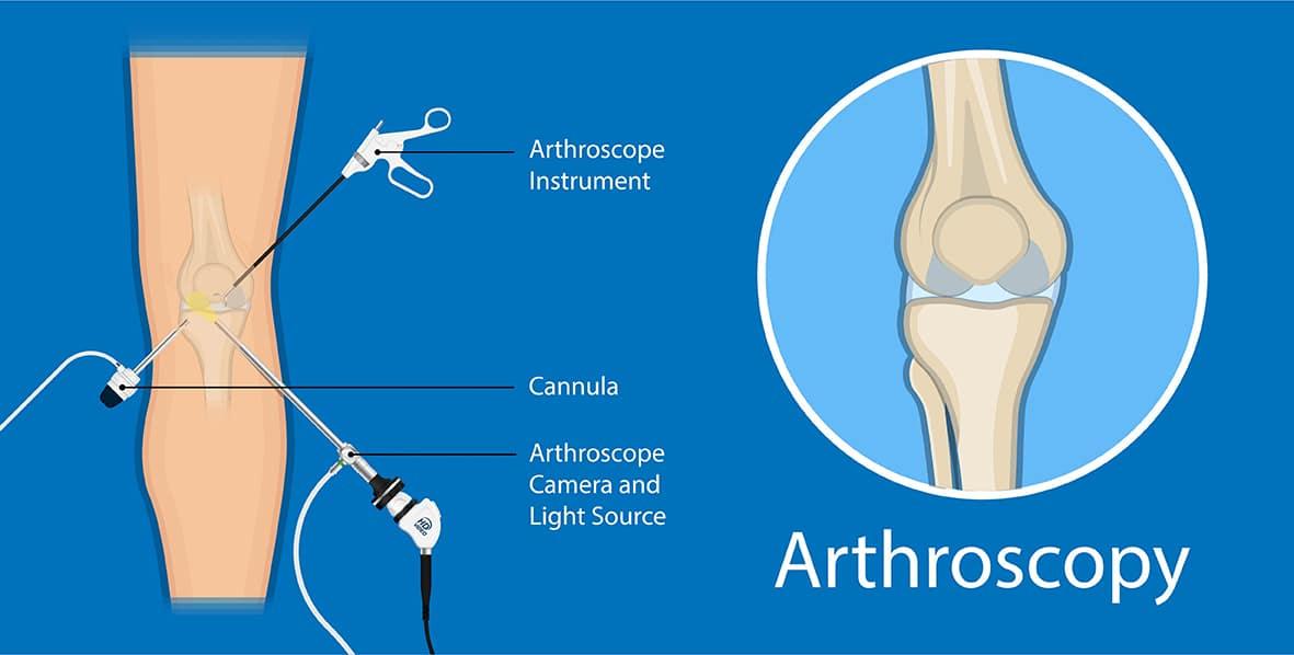 Arthroscopy | Spire Orthopaedic Centre