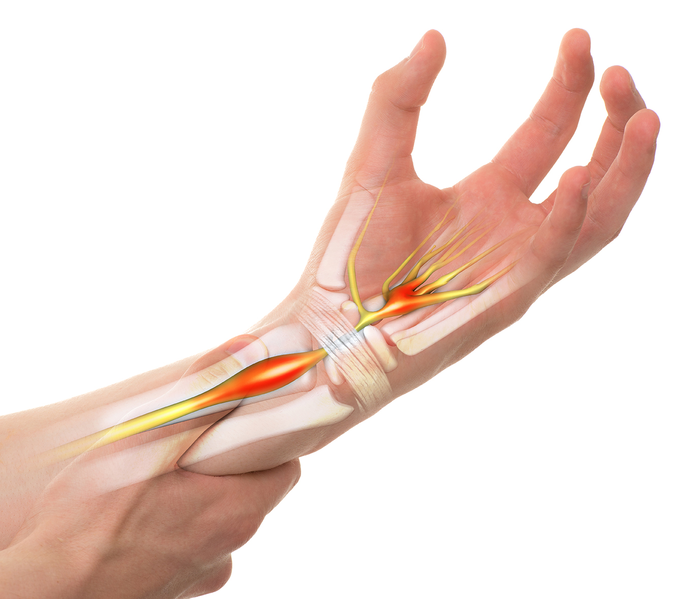 Carpal Tunnel Syndrome | Spire Orthopaedic
