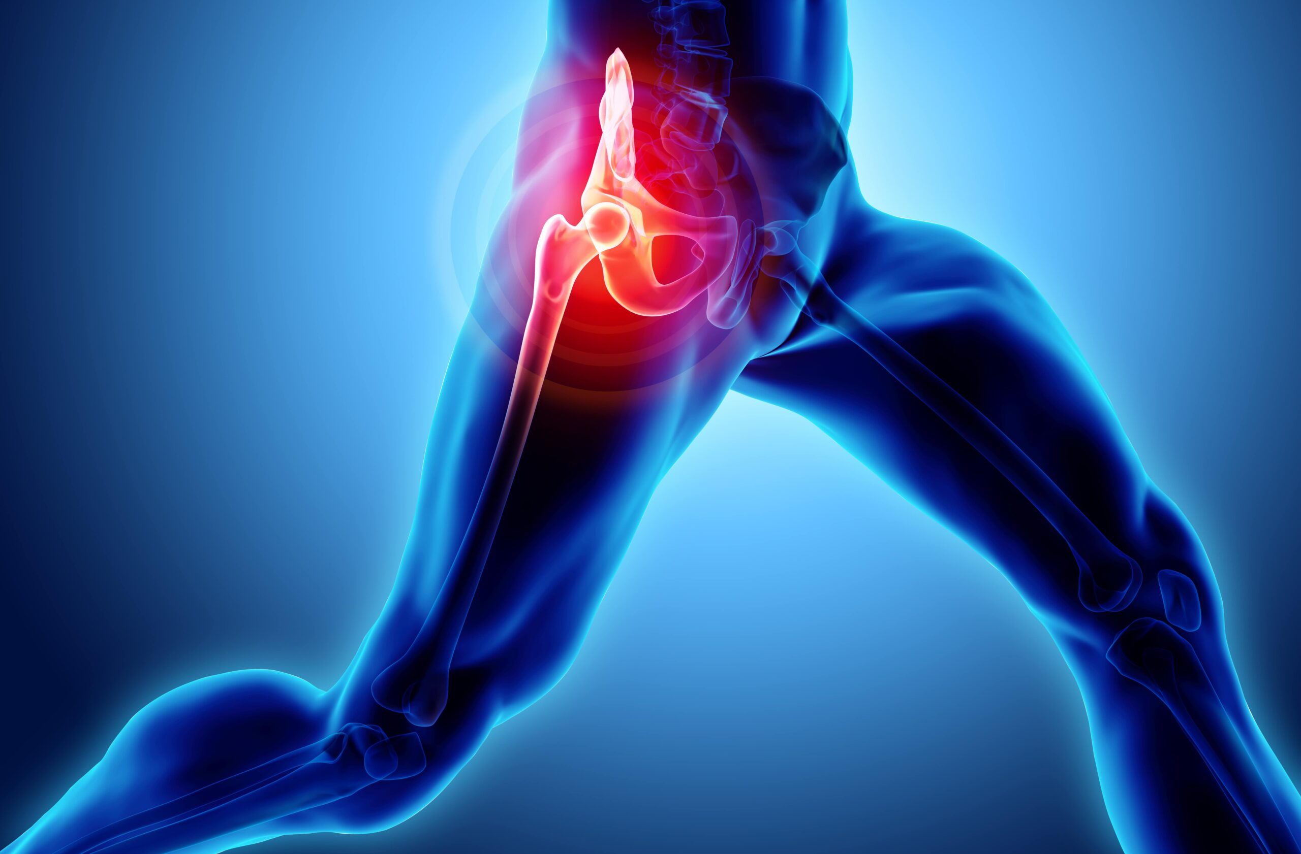 Joint | Spire Orthopaedic Centre