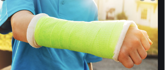 Waterproof Casting for Fractures | Spire Orthopaedic