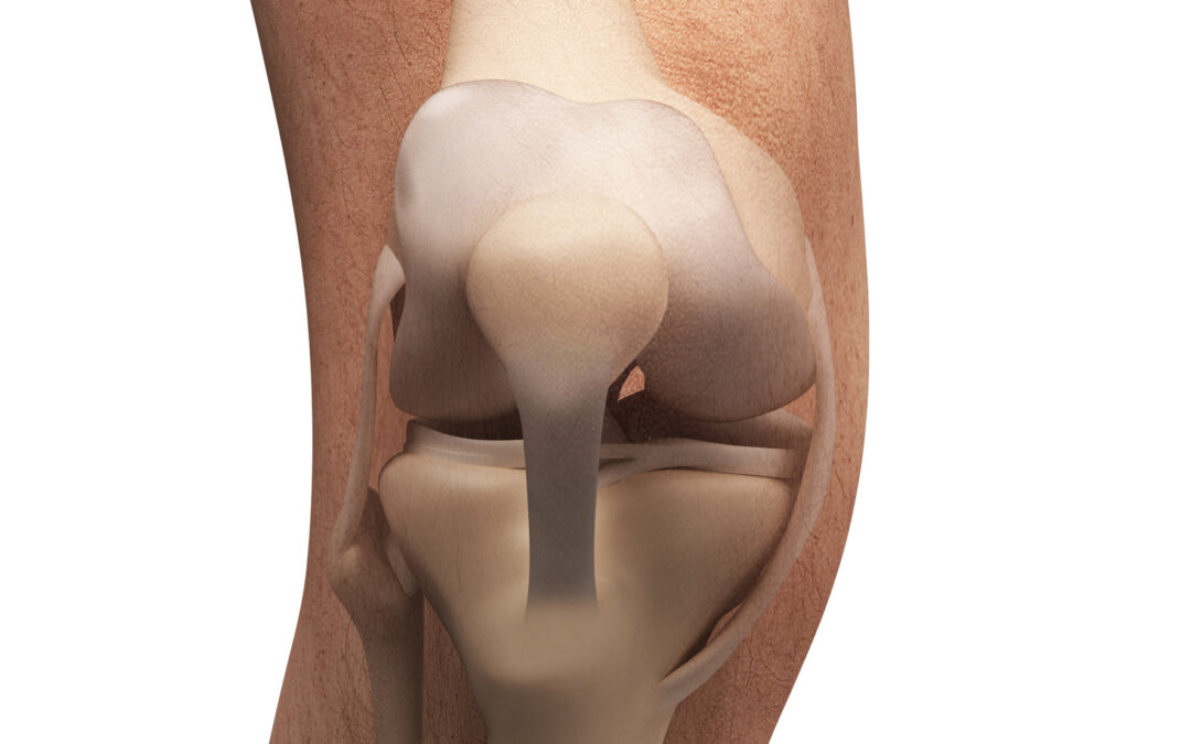 What are the Remedy and Consequences of Leaving a Torn Meniscus Untreated?